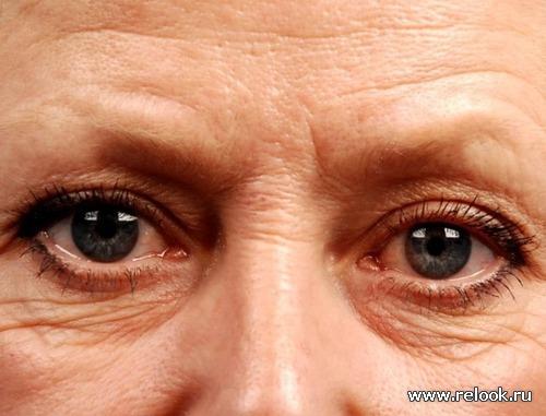 Морщины под глазами - убираем народными методами