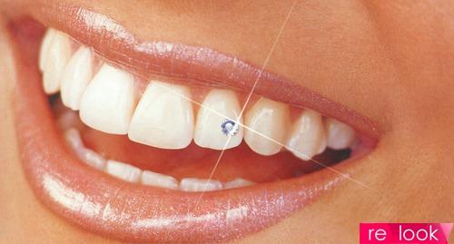 Украшения на зубах – улыбайтесь на здоровье!